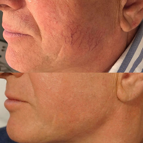 Before and After Thread Vein Removal