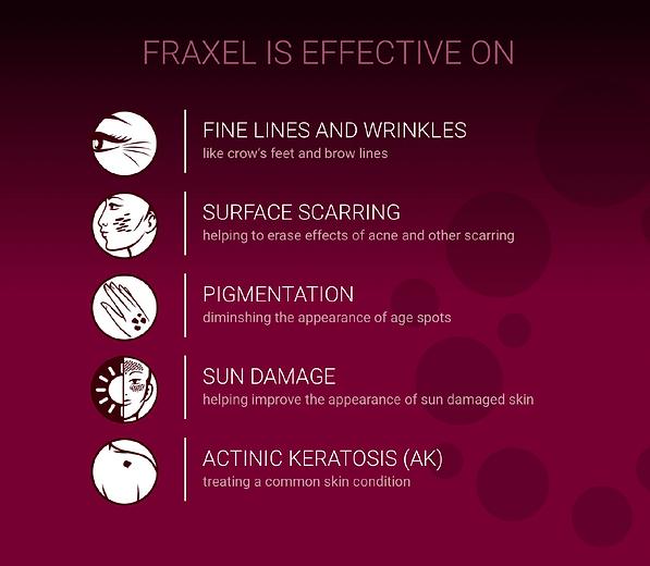 Fraxel 2