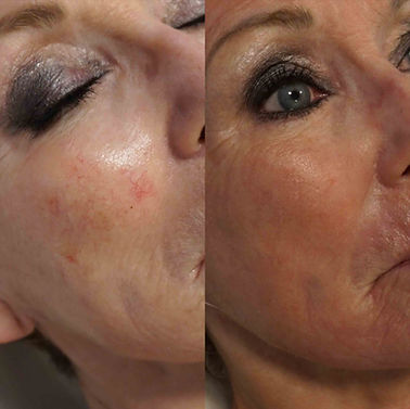 Before and After Thread Vein Removal images