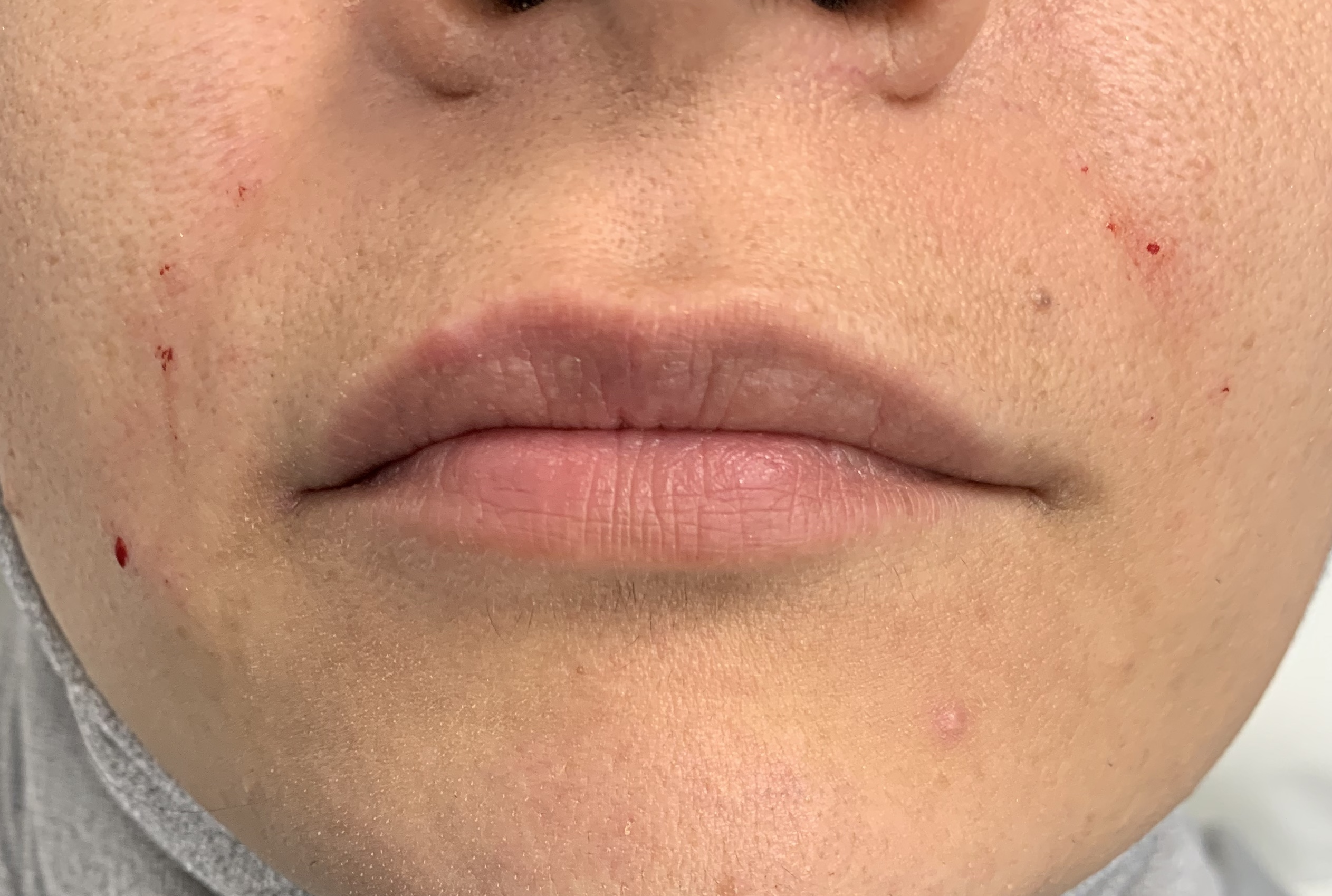 Before Lip & Nasolabial dermal fillers!