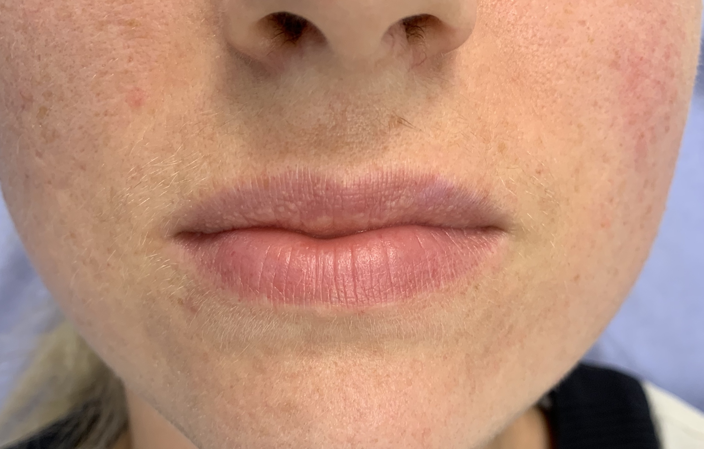 Before 1.1ml Revolax Dermal Filler!