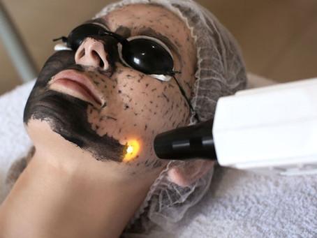 Carbon Laser - Sekadar Gigit Semut!