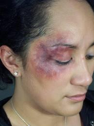 Beaten for Jesus