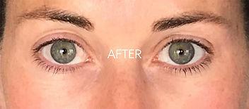 CryoToning-Facial-after.jpg