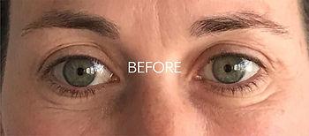 CryoToning-Facial-before.jpg