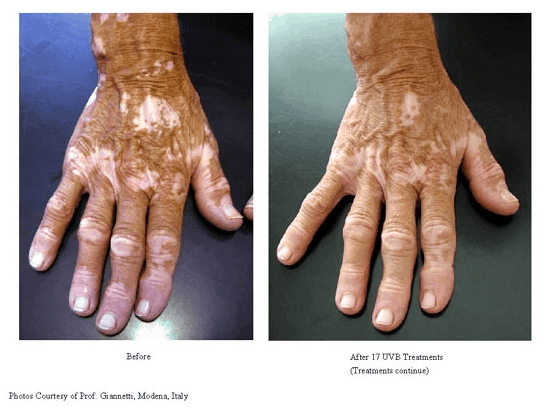 3Vitiligo-Treatments-photo3.png
