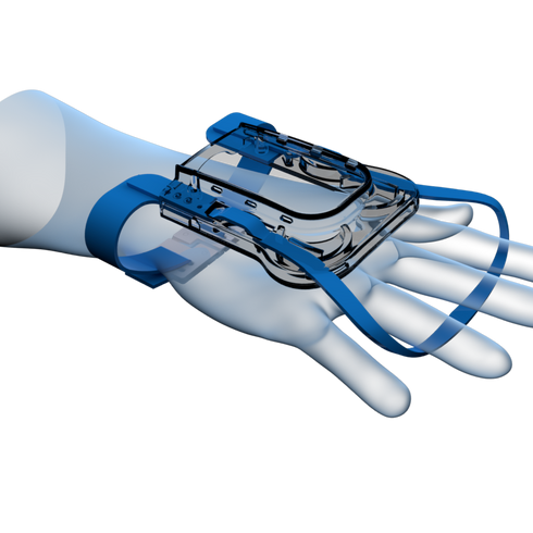 IV Glove Side View