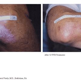 Psoriasis-Treatment-photo4.png