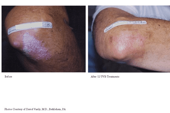 Psoriasis-Treatment-photo4.png