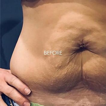 Slimming-1-before.jpg