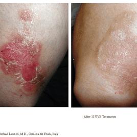 Psoriasis-Treatment-photo7.png