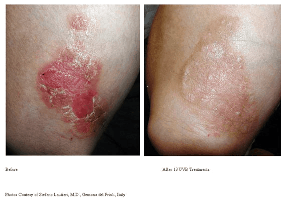 Psoriasis-Treatment-photo7.png