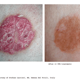 Psoriasis-Treatment-photo10.png