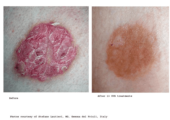 Psoriasis-Treatment-photo10.png