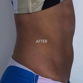 After-7dayslater-abdomen.jpg