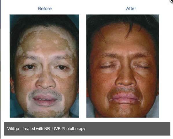 Vitiligo-Photo-11.jpg