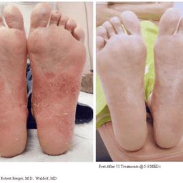 Psoriasis-Treatment-photo3.png