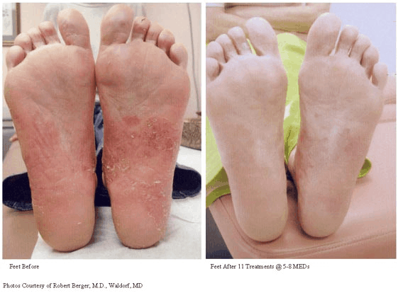 Psoriasis-Treatment-photo3.png