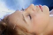 le lifting l'acupuncture la médecine chinoise Gérald Bergès