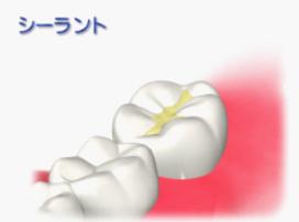 シーラント、むし歯予防
