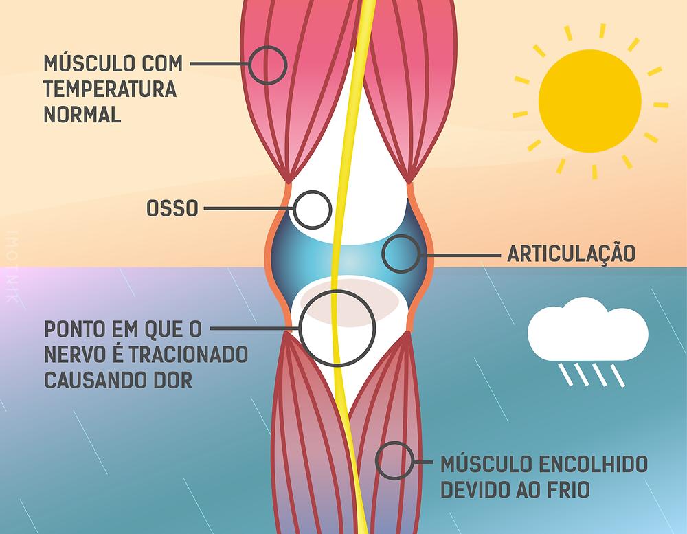 Imagem ilustrando o músculo relaxado com temperatura ambiente normal e outra com o músculo retraído tracionando nervo e causando dor em dias de temperatura baixa.