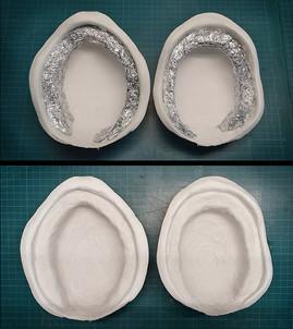Mundinnenraum: Unterbau für die zukünftige Zahnfleischkante wird aus Aulufolie geformt, verklebt und mit Gips überzogen