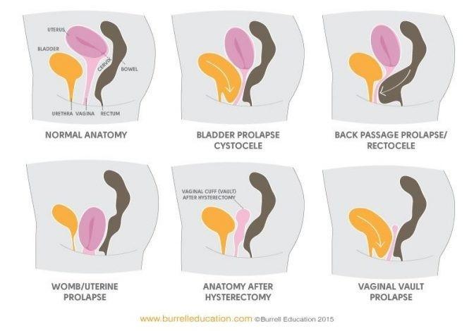 prolapse diagrams