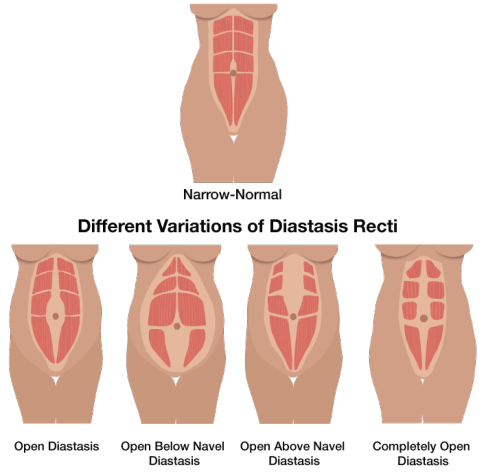 variations of diastasis