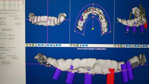 Implantes de titanio coronas de porcelana