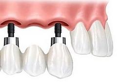 implantes-dentales-1