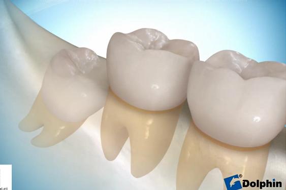 tercer molar1.png