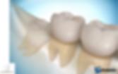 Tercer molar incluido