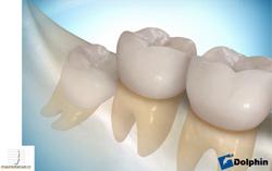 tercer molar1