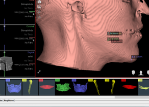 Prognatismos mandibulares