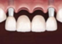 puente-dental-de-cuatro-piezas.jpg