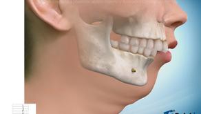 Hipoplasias mandibulares o Clases II dento facial