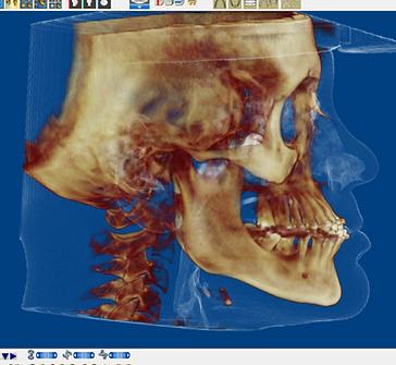 Imagen de cirugía ortognática 3d Dr. Antonio Marino