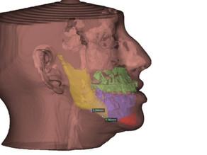Hipercondilismo mandibular