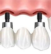 Puente sobre implantes dentales