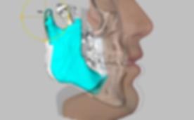 perfil maxilofacial.png
