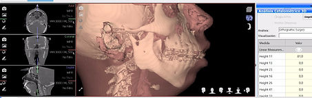Cefalometría 3d ortognatica