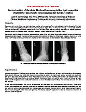 Distal Fibula Reconstruction - Cummings