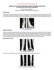 Open Tibial Fracture - Ortega