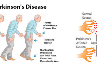Early Intense Exercise Delays Parkinson's Disease Progression