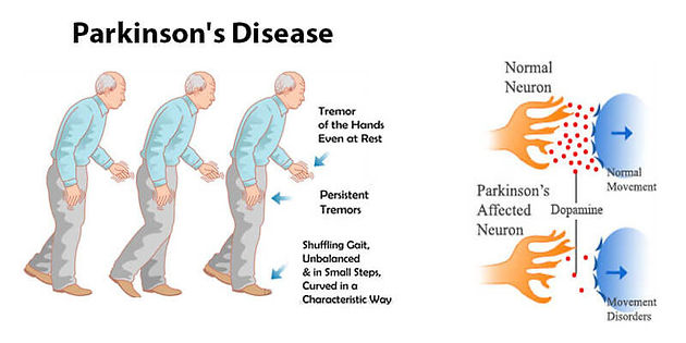 Parkinsons Disease Progression >> Early Intense Exercise Delays Parkinson S Disease Progression