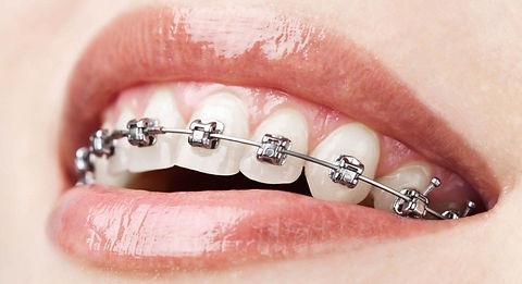 understanding-metal-braces.jpg