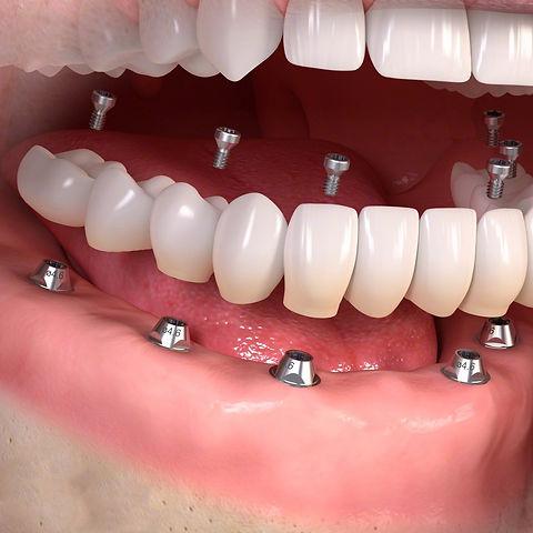 full mouth dental implants.jpg