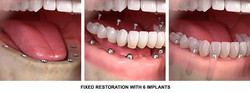Full-Mouth-all-on-6-dental-Implants-proc