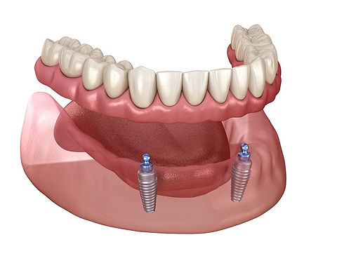 mini-implant-overdenture.jpeg