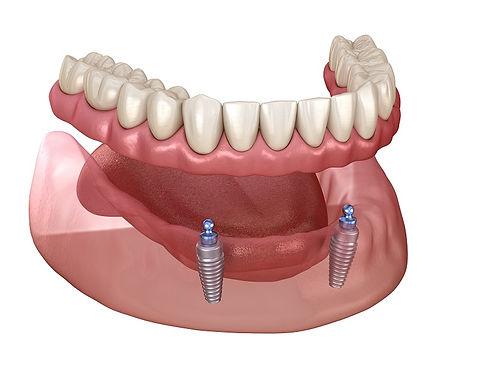 mini-implant-overdenture.jpeg